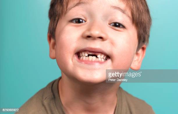 boy proudly showing off missing front teeth - tooth fairy stock pictures, royalty-free photos & images