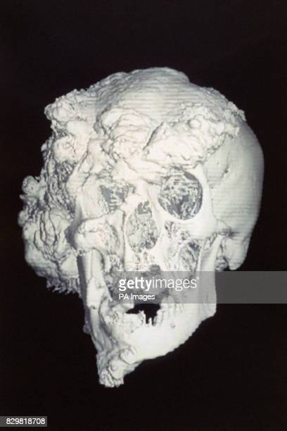 S FAMOUS ELEPHANT MAN IN THE CENTURY FOLLOWING MERRICK'S DEATH IN 1890 THE MOST WIDELY HELD THEORY WAS THAT HE SUFFERED FROM NEUROFIBROMATOSIS OFTEN...
