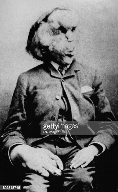 S FAMOUS ELEPHANT MAN IS SHOWN IN A PHOTO FROM THE RADIOLOGICAL SOCIETY OF NORTH AMERICA IN THE CENTURY FOLLOWING MERRICK'S DEATH IN 1890 THE MOST...