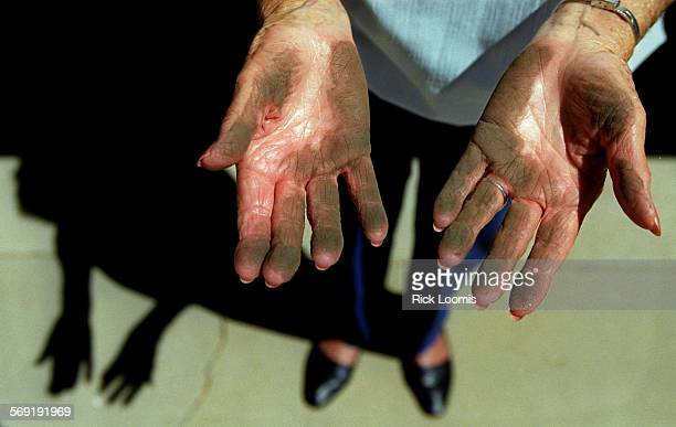 Rubber1.RL––Brea––Emilee Hall, who has lived in her Brea home since 1954, shows black soot she got on her hands after wiping them on the top of her...
