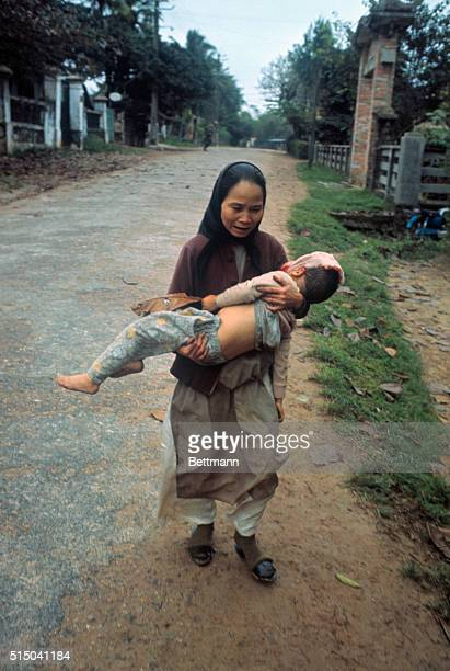 South Vietnamese woman carries her young son who has been wounded in the head PHKyoichi Sawada
