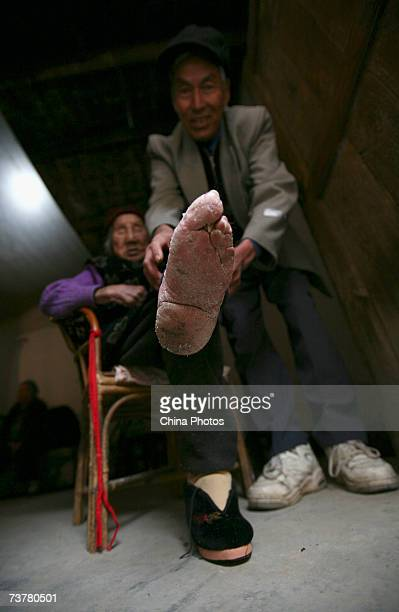 100yearold bound feet woman whose surname is Luo Pu displays her bound foot in her home at Liuyi Village on April 3 2007 in Tonghai County of Yunnan...