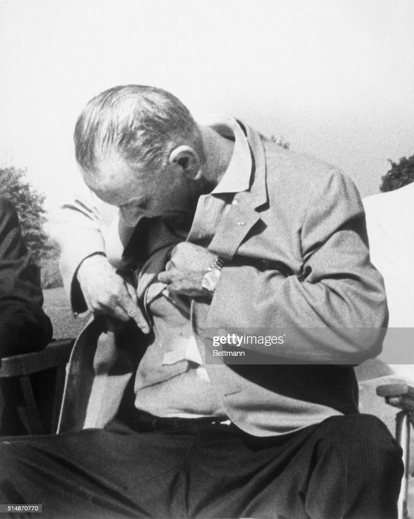 President Johnson Shows Surgical Scar : Fotografia de notícias