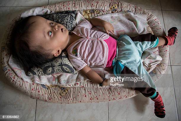 10monthold NARA ARISKA who suffers from a rare condition called hydrocephalus known as water on the brain sleeps at a hut in Toboali village on the...