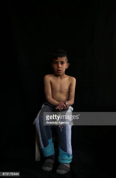 11yearold wounded Syrian war victim Fadil Amir who fled from his house due to ongoing civil war is seen in Gaziantep Turkey on April 20 2017 Fadil...