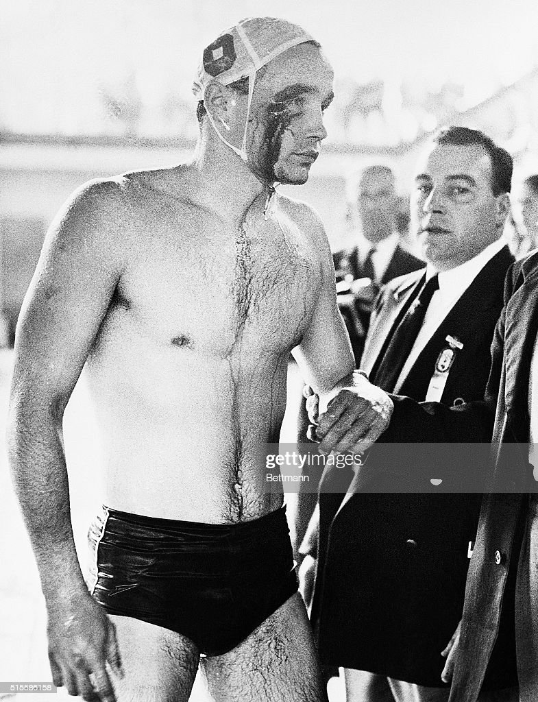 Melbourne, Australia- 1956 OLYMPICS- PLAYER INJURED IN WATER POLO BRAWL. Blood streams from the cut eye of Ervin Zador- injured during a brawl with Russian water polo players during closing minutes of the Soviet-Hungary match. The match ended in chaos with the crowd booing the Russians. Throughout the match, which Hungary won 4-0, fists, elbows, knees and feet were used whenever the players came in contact.