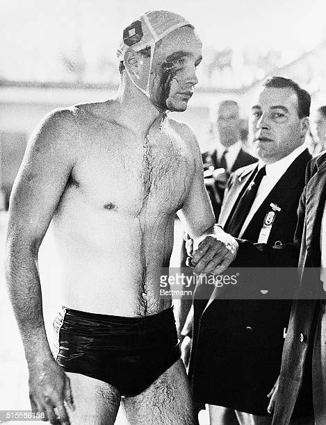 12/8/1956Melbourne Australia 1956 OLYMPICS PLAYER INJURED IN WATER POLO BRAWL Blood streams from the cut eye of Ervin Zador injured during a brawl...