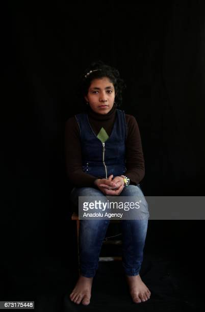 13yearold wounded Syrian war victim Meysa Amir who fled from her house due to ongoing civil war is seen in Gaziantep Turkey on April 20 2017 Meysa...