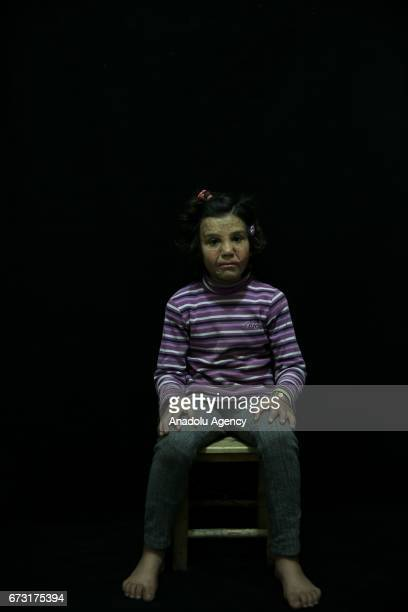 13yearold wounded Syrian war victim Neda Kurdiye who fled from her house due to ongoing civil war is seen in Gaziantep Turkey on April 12 2017 Neda...