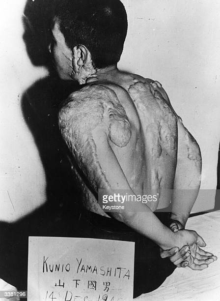 Kunio Yamashita displaying the injuries he suffered as a result of the atomic bomb that was dropped on Hiroshima on the 6th August 1945.