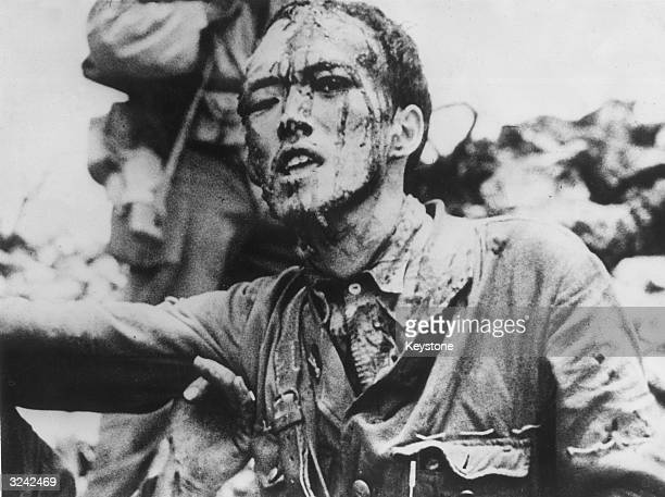 His face covered with blood from a head wound a Japanese naval lieutenant surrendered to American forces after hiding in caves on the island of...