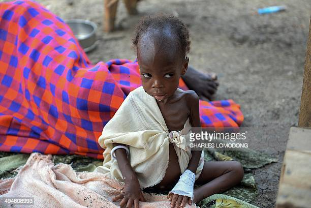A 16monthold South Sudanese boy Nyasbit Otor who is suffering from severe malnutrition sits outside a clinic of Medecins Sans Frontieres on May 30...