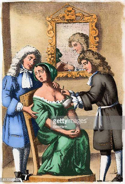 17th century surgeon shown performing a mastectomy After an engraving in John Brown's A Complete Treatise of Preternatural Tumors London 1678