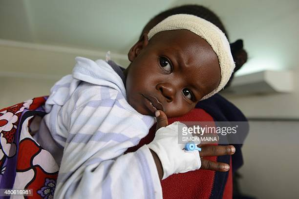 18monthold boy Satrin Osinya is pictured as he receives treatment at the Kenyatta National hospital in Nairobi on March 26 three days after gunmen...