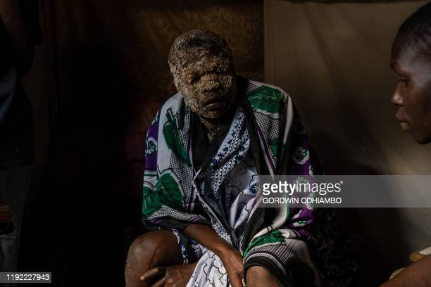 TOPSHOT 18yearold Isaac Namolo from Gisu tribe sits with local brew around his head as he is consoled by elders after being circumcised at Kibera...