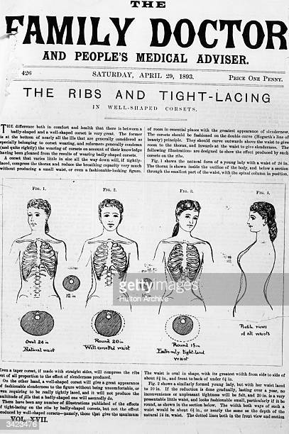 Front page of a paper 'The Family Doctor' illustrating the difference between good and bad corsets and advising that tight lacing leads to ill health...