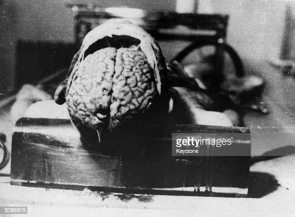 An autopsy specimen of the brain of a Dachau concentration