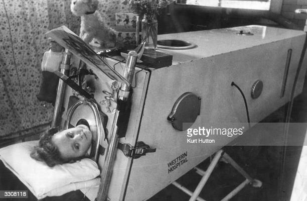 An infantile paralysis patient having 'iron lung' treatment at Western Fever Hospital Fulham London Original Publication Picture Post 4420 No Need To...