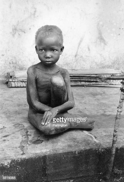 A starving Biafran child during the Biafran War in the Republic of Biafra