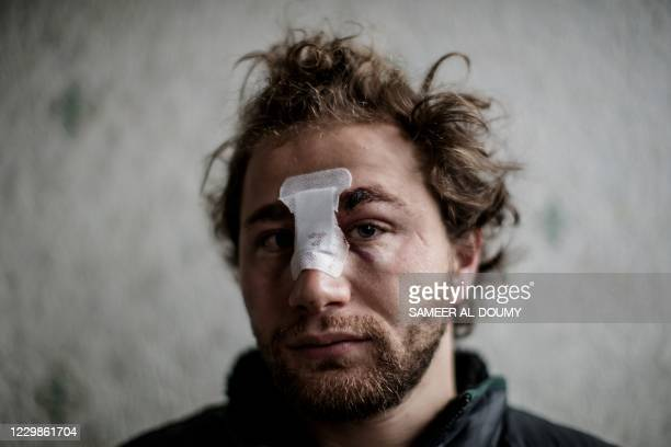 Year-old Syrian freelance photographer Ameer al-Halbi, injured during clashes in a demonstration against the 'global security' draft law, poses at...
