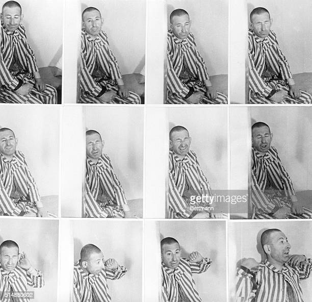 These photographs were made by German doctors to illustrate experiments carried out with an unfortunate camp inmate 'guinea pig' The man's death was...