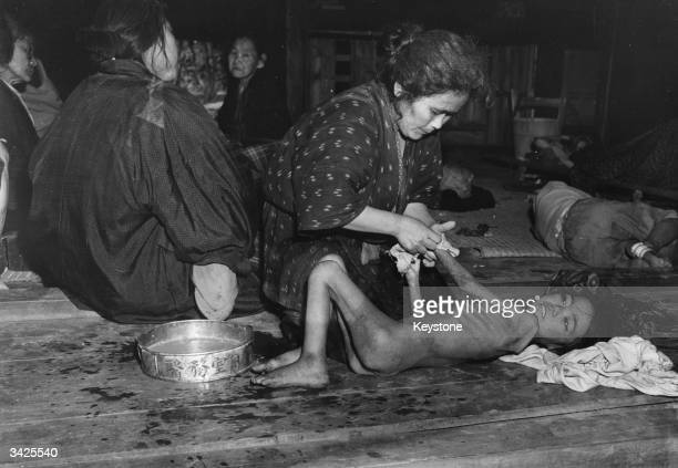 A severely malnourished girl from Okinawa is given a sponge bath in a refugee camp on the island which is part of southwest Japan