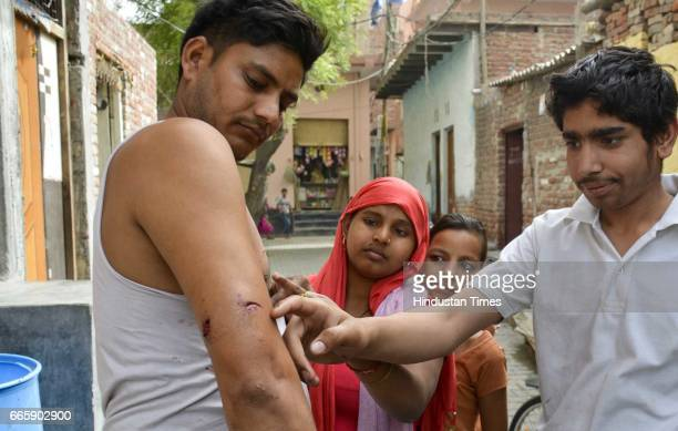 Year-old BSES employee Bittu showing his wound after being attacked by a leopard while riding on a bike on April 7, 2016 in Ghaziabad, India. A...
