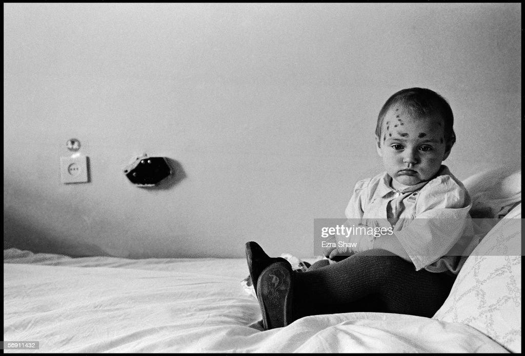 Children Of Chernobyl : News Photo