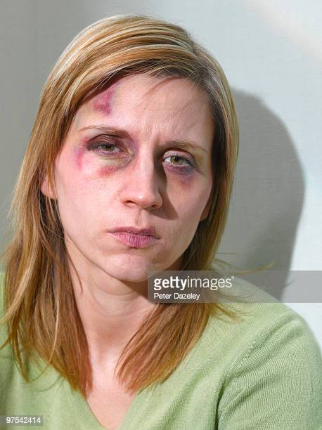 35yr old woman after domestic violence - derrota imagens e fotografias de stock
