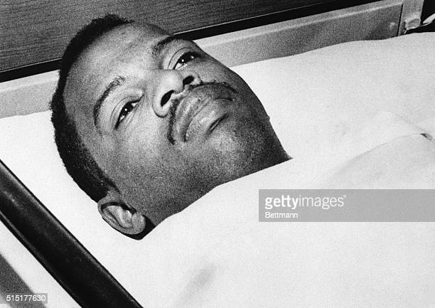 Selma, AL: John Lewis, head of the Student Non-violent Coordinating Committee, lies immobile in the Good Samaritan Hospital in Selma, AL. After...