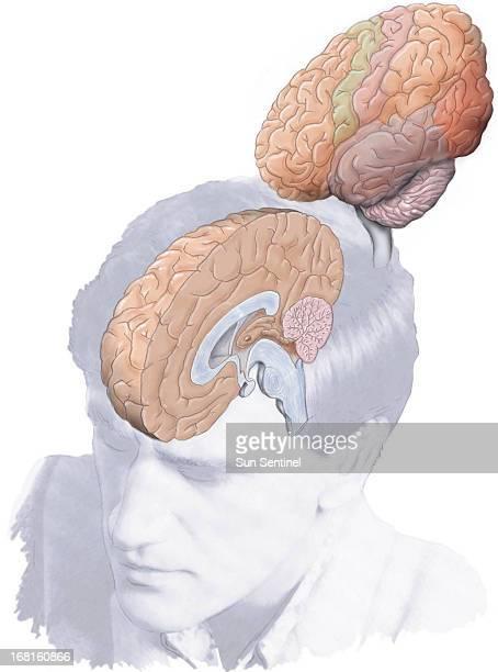 39p x 52p R Scott Horner color illustration of left right halves of human brain Sun Sentinel /MCT via Getty Images