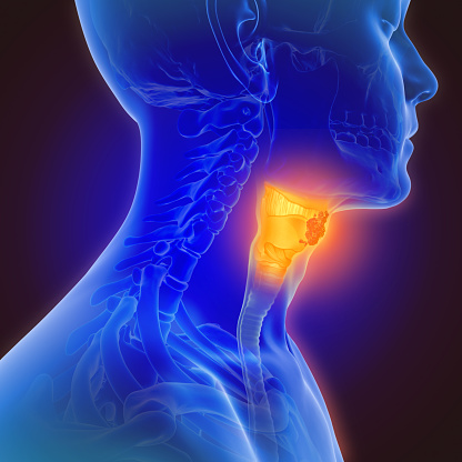 3d illustration of throat cancer 1130880428