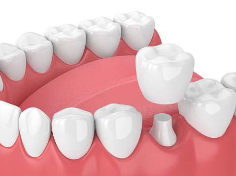 3d render of jaw with teeth and dental crown restoration 940971686