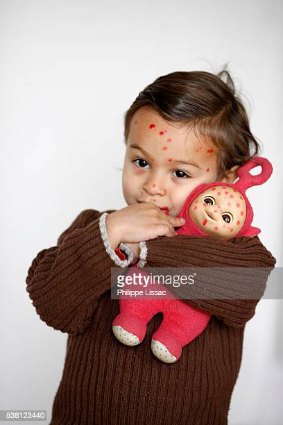 3-year-old boy with chickenpox and po, a teletubby - chickenpox stock pictures, royalty-free photos & images