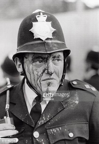 4/11/1981London England A bloodied inspector Dennis Bell injured by a flying brick during hourslong riots Saturday between rampaging youths and...