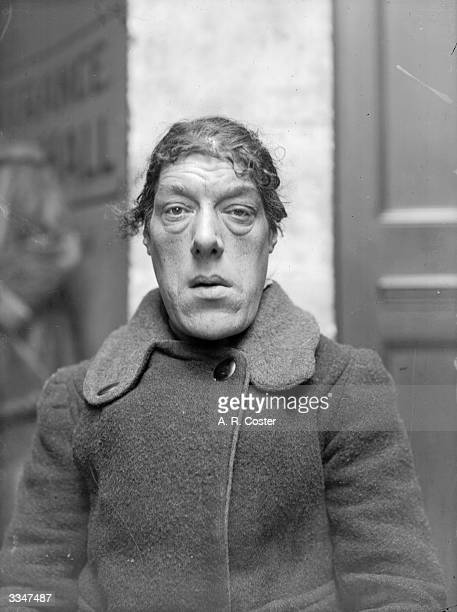 Mary Ann Bevan also known as Rosie Wilmot who claimed the title of the 'Ugliest Woman In London' Bevan suffered from a growth hormone condition known...