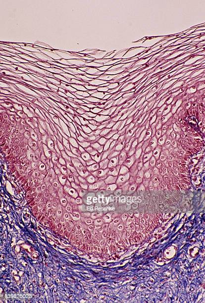 STRATIFIED SQUAMOUS EPITHELIUM. (Vagina, non-keratinized) 50x. This epithelium has many layers (or strata) and the cells near the surface become very flat (squamous). Also, shows supporting connective tissue below.