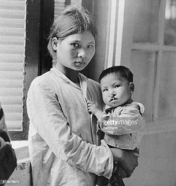 A mother holds her small daughter at a Hanoi hospital where the child is being treated for birth defects The child's father a North Vietnamese...