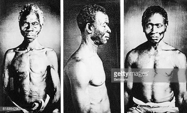 5/31/1977Cambridge MA Photographs of American slaves possibly the oldest known in the country have been discovered in the basement of a Harvard...