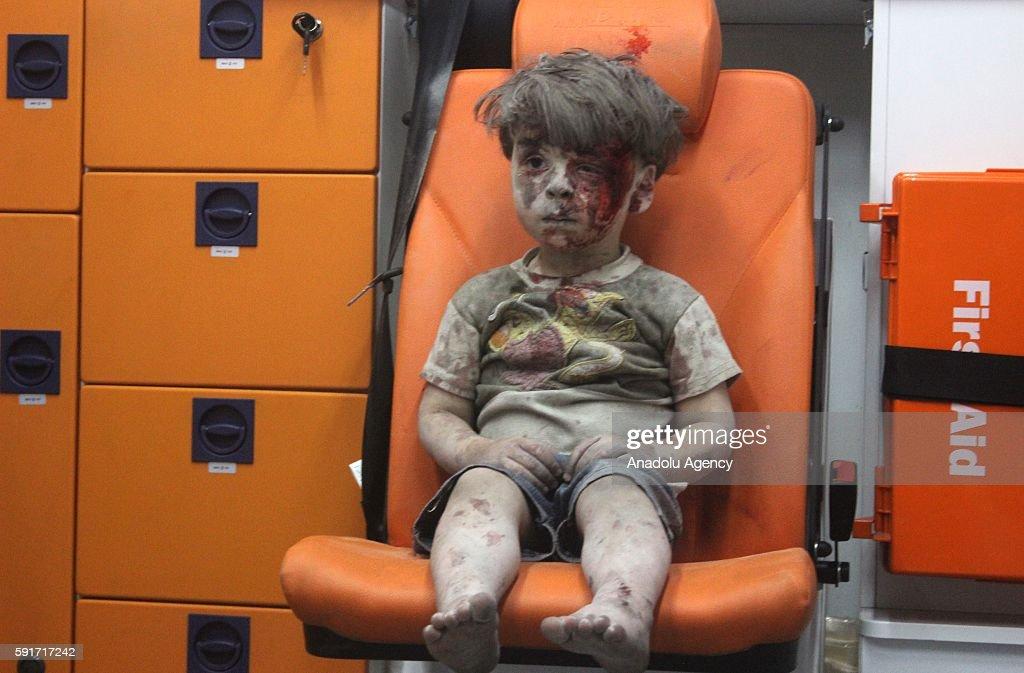 Wounded Syrian Kid Omran Daqneesh : News Photo