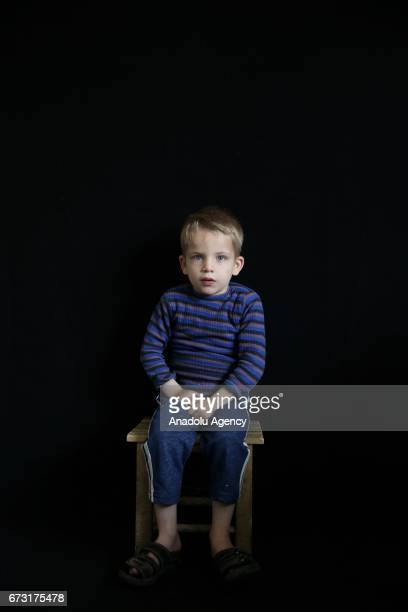 6yearold wounded Syrian war victim Alef Cerf who fled from his house due to ongoing civil war is seen in Gaziantep Turkey on April 12 2017 Alef Cerf...