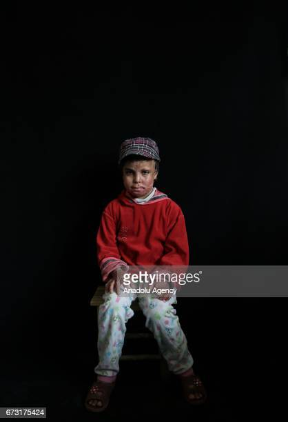 6yearold wounded Syrian war victim Fatima Mohammed who fled from her house due to ongoing civil war is seen in Gaziantep Turkey on April 12 2017...