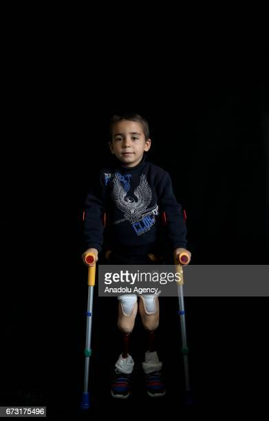 6yearold wounded Syrian war victim Mohammed Lamut who fled from his house due to ongoing civil war is seen in Gaziantep Turkey on April 12 2017...