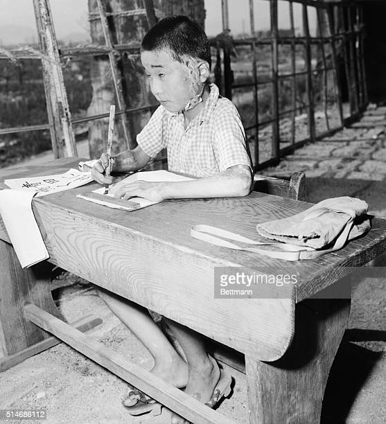 This child will remember the atom bombing of Hiroshima as long as she livesshe carries its hideous scars Even if that weren't enough the signs are...