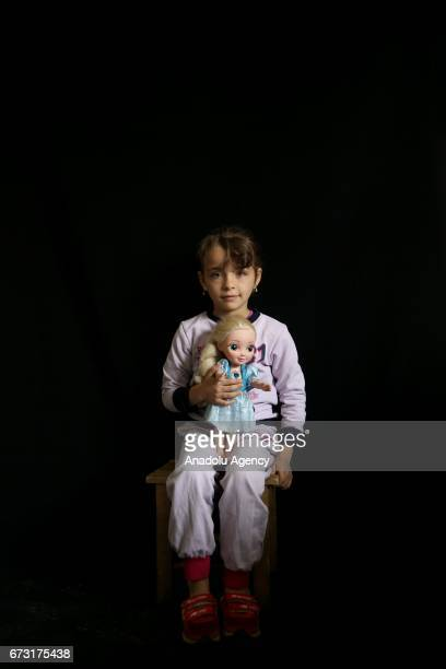 7yearold wounded Syrian war victim Reza Mohammed who fled from her house due to ongoing civil war is seen in Gaziantep Turkey on April 12 2017 Reza...