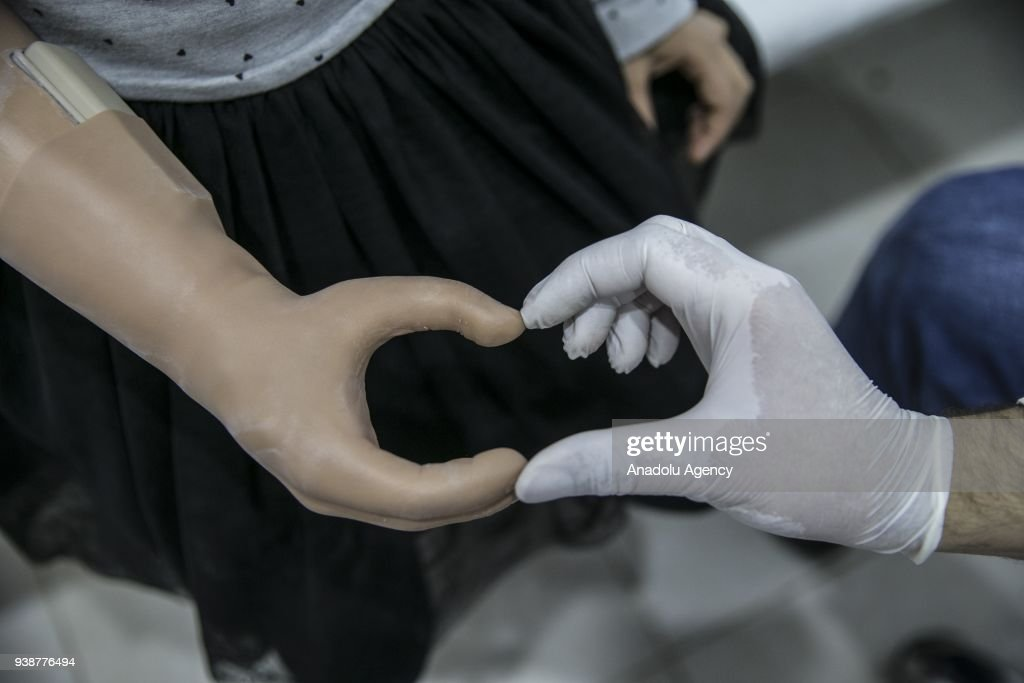 Syrian kid gets her prosthesis via social media : News Photo