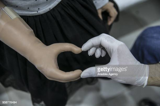 A 9yearold Syrian kid Hatice al Ahmed who was born without her right arm makes heart shape sign with her own arm prosthesis at an Orthotic and...