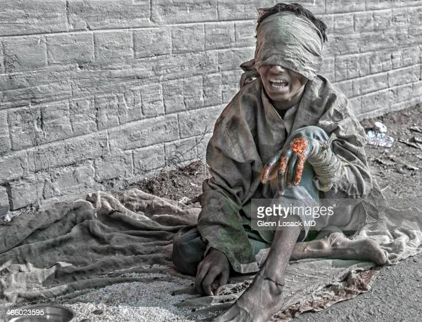 A child sitting crying on a dirty blanket with a necrotic wound on his left hand wearing a filthy bandage around his eyes and forehead and his left...