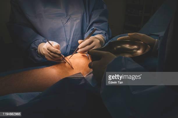un grupo de cirujanos y enfermeras que operan en la pierna de un paciente chino en el quirófano - varices fotografías e imágenes de stock