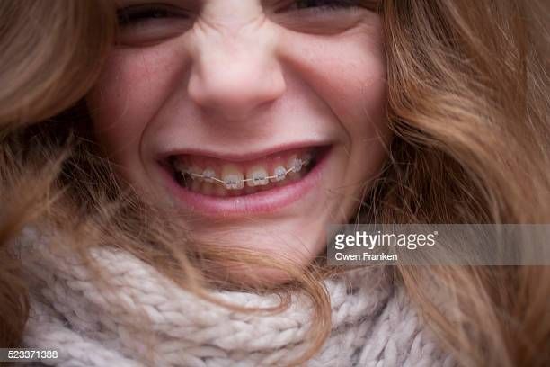 a smiling teenage girl's braces